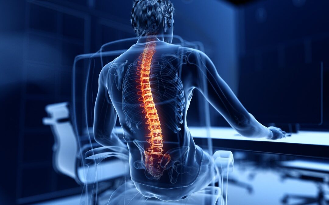 Herniated Disk Surgery – How To Avoid It